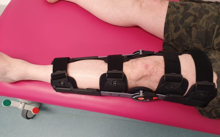 Image shows a straight leg from above, wearing a T-Scope knee brace.