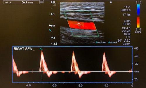 Vascular scan