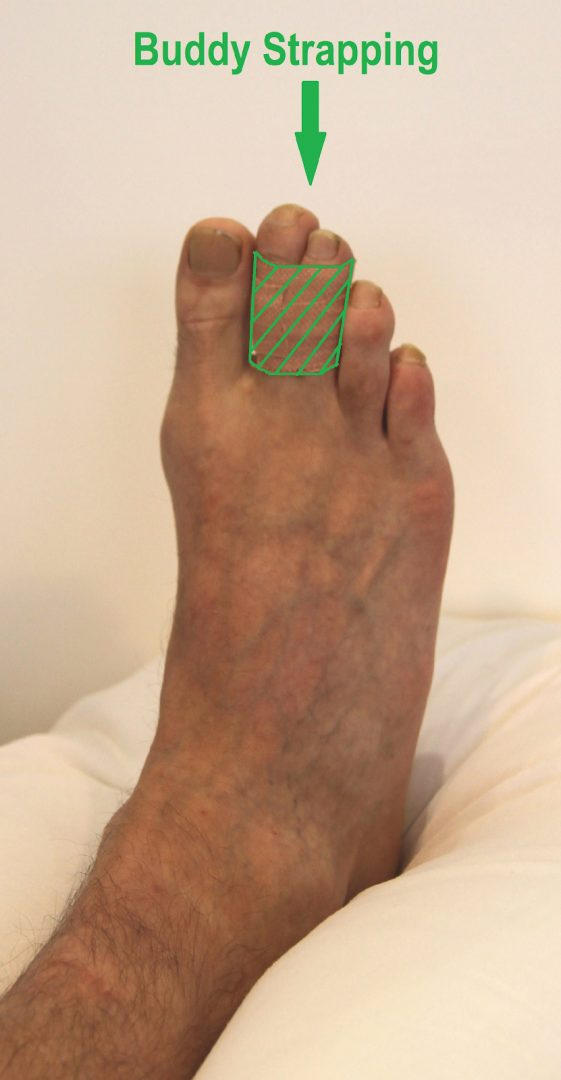 Person with their injured toe buddy strapped to a non injured toe