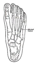 Diagram of the human foot showing a mid-shaft bone fracture