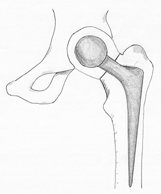Illustration showing replacement of half of the hip joint known as a hemiarthroplasty