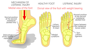Illustration showing a healthy foot and a Lisfranc injury