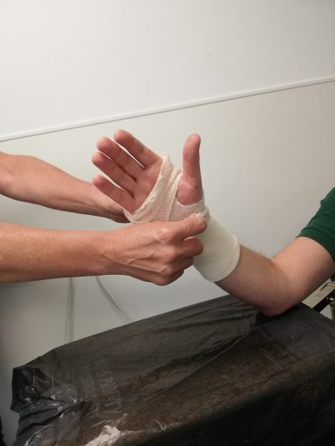 4th step of removing a soft cast