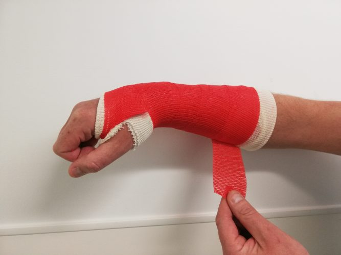 2nd step of removing a soft cast
