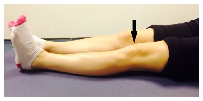 Quadriceps exercise for knee injury
