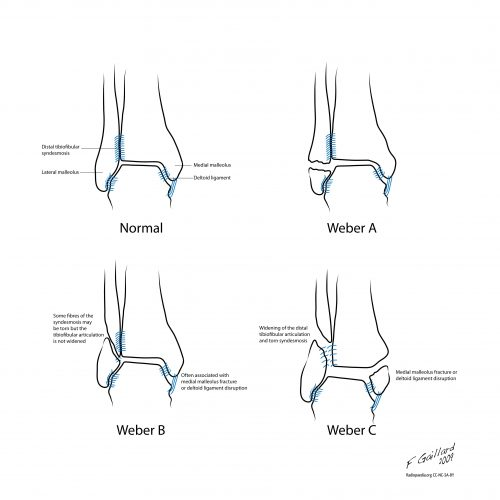 Diagram of Weber A, B and C fractures compared to an uninjured ankle
