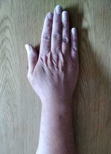Person with their palm on a table facing down with thumb closed