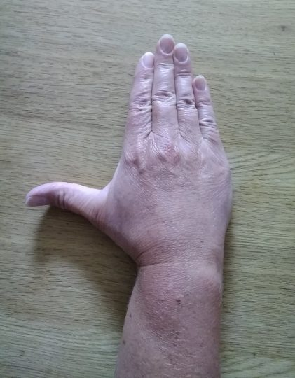 Person with their palm facing down on a table with their thumb spread away from their index finger.